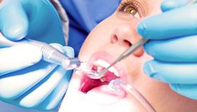 servizi:endodonzia