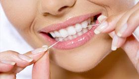 servizi:igiene orale