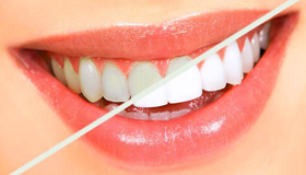 sbiancamento_dentale